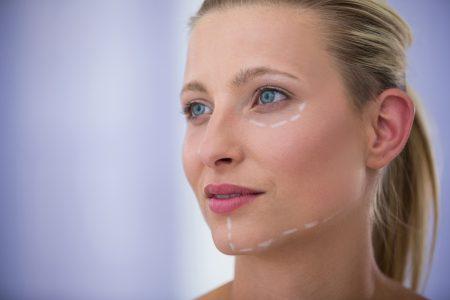 Toxina botulinică (Botox)